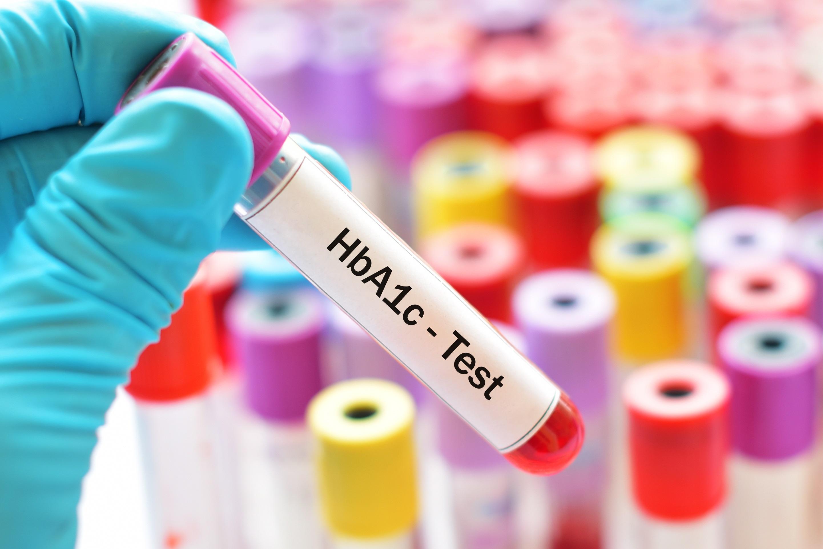 Typ-2-Diabetes – Wie soll der Blutzucker eingestellt sein?